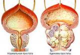 Аденома предстательной железы, простатит